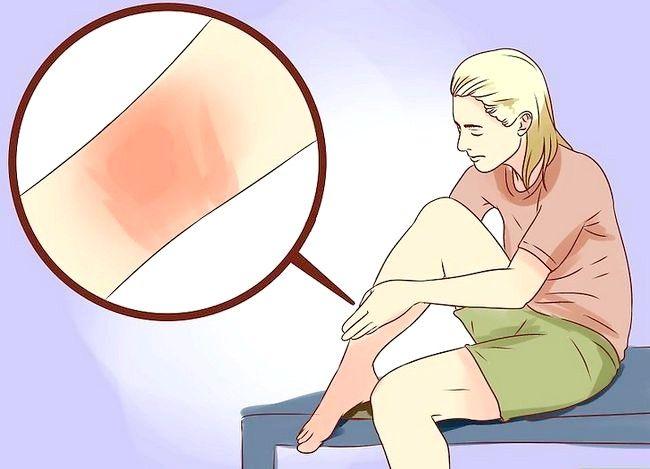 Hvordan man behandler forbrændinger ved hjælp af honning